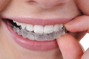 apparecchio dentale trasparente