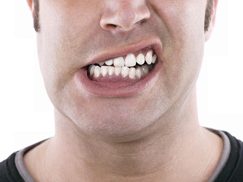Malocclusione bocca